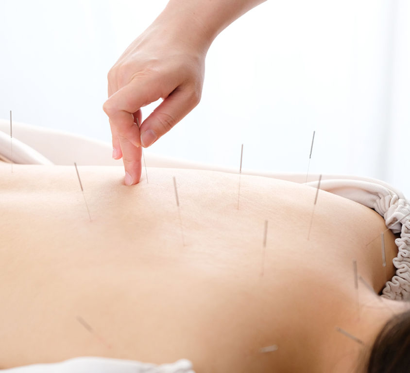 Dry Needling Trigger Point Therapy